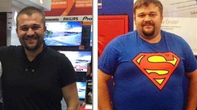 Bir yılda 80 kilo verdi, hayatı değişti