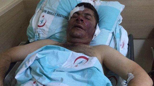 Kahramanmaraş'ta Enerji İş Sendikası yetkilisine saldırdılar