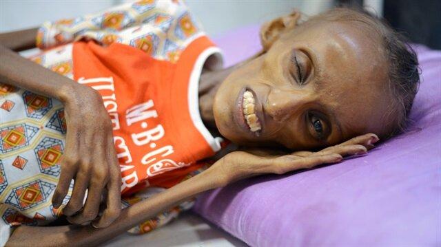UNICEF'e göre, Yemen'de yaklaşık 10 milyon çocuk acil insani yardıma ihtiyaç duyuyor.