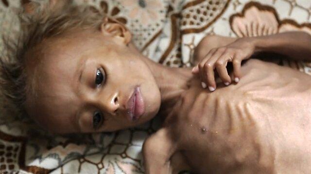Yemen… Çocuklar açlıktan ölüyor!