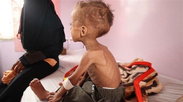 Yemen'de 20 milyon kişi yardıma muhtaç