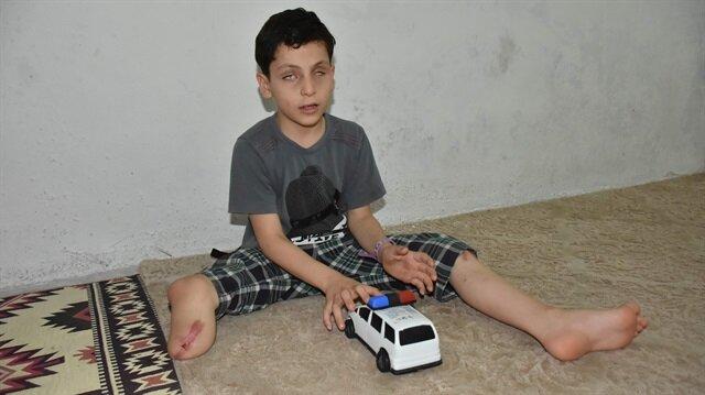 """طفل سوري فقد ساقه وعينيه جراء قنبلة """"داعش"""" يأمل الحصول على طرف صناعي"""