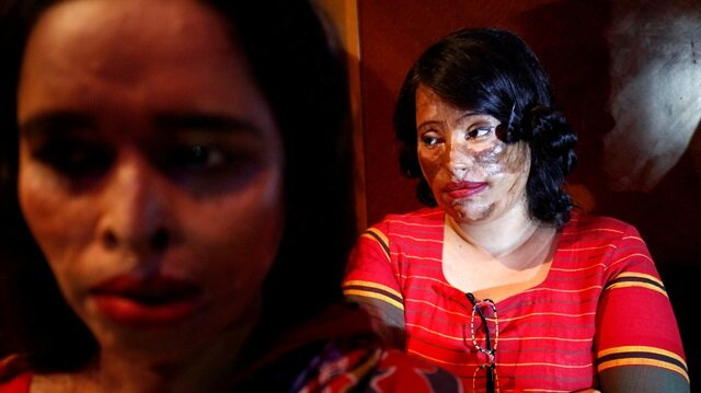 """Acid attack survivors wait in the back stage prior to participate in a fashion show titled """"Beauty Redefined"""" organized by ActionAid Bangladesh in Dhaka, Bangladesh."""