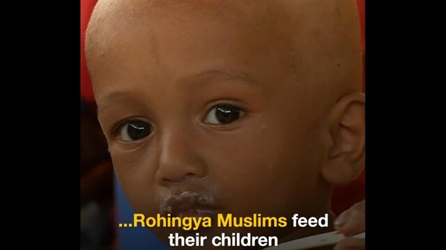 Rohingya refugee children face risk of malnutrition
