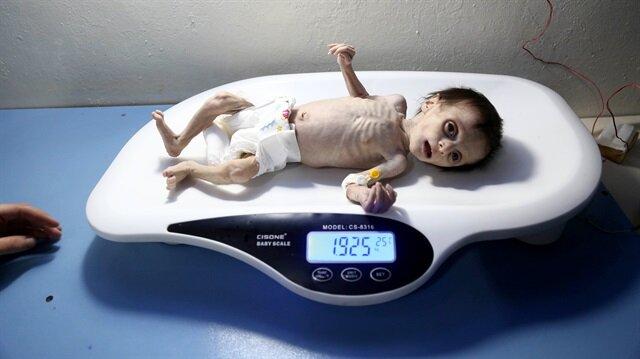 Baby Sahar only survived 34 days due to Assad regime