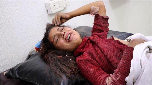 Doğu Guta'da yaralanan Suriyeli küçük kız çocuğu