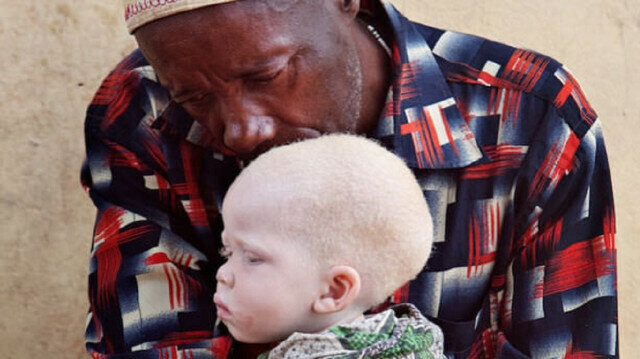 Turkey's national flag carrier helps albinos in Africa