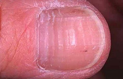 Бороздки на ногте это грибок