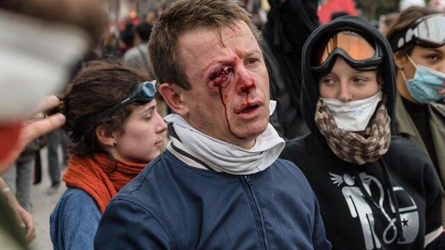 Fransa'da polis şiddetinde gözünü kaybetti