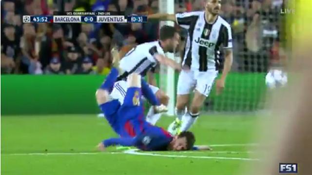 Messi'nin boynu kırılıyordu