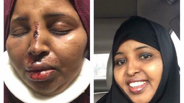 ABD'de ırkçılar Müslüman kadına saldırdı