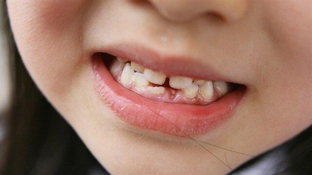 Çocuklarda kaç bebek dişinin normal olması gerekiyor
