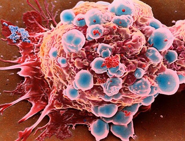 Jinekolojik kanserlere karşı önlemler