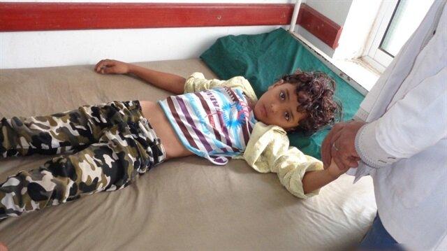 Yemen'de kolera salgını tüm ülkeye yayıldı