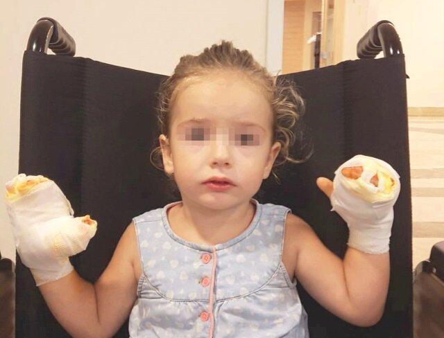 Patlayan balon Mira'nın ellerini yaktı