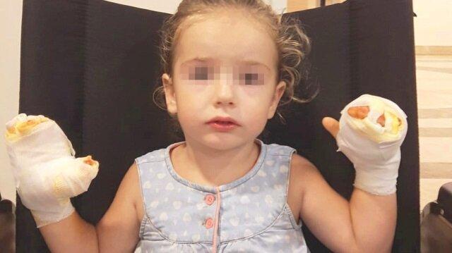 3 yaşındaki Mira S., balonun patlaması sonucu ellerinden yaralandı.
