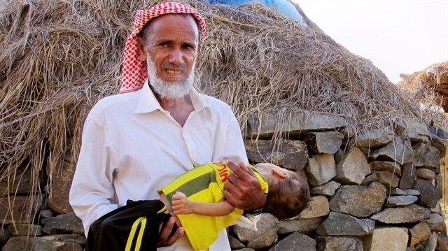 İç savaşın ve koleranın vurduğu Yemen'de 10 milyon çocuk yardıma muhtaç durumda.