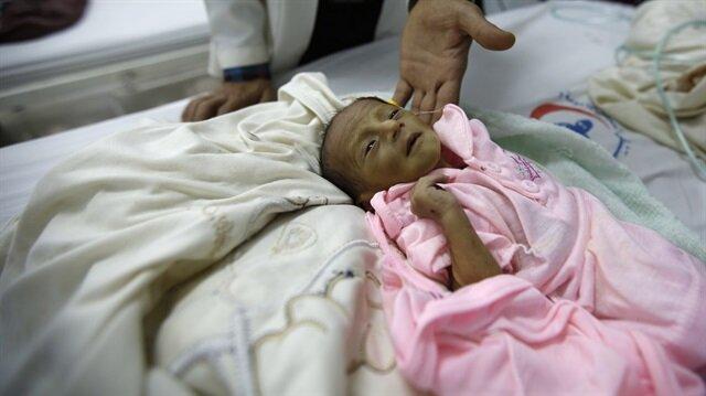 Doktor, iyi beslenemediği için sağlığı çok kötü olan bir çocuğu gösteriyor... Yemen, Sana.  Fotoğraf: AP