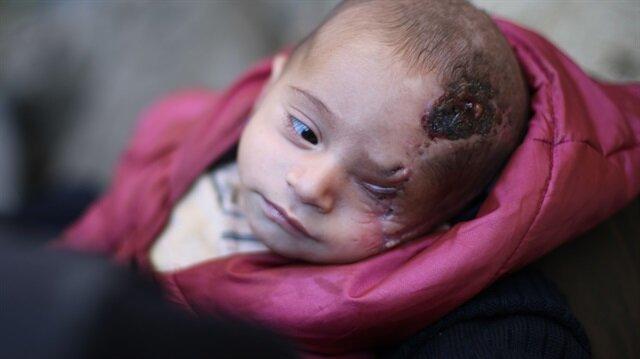 Kerim bebek, Doğu Guta'da uğradığı hava saldırısında annesini ve gözünü kaybetti.
