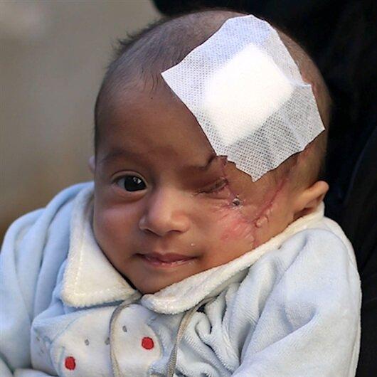 Kerim bebeğin diğer gözü de tehlikede