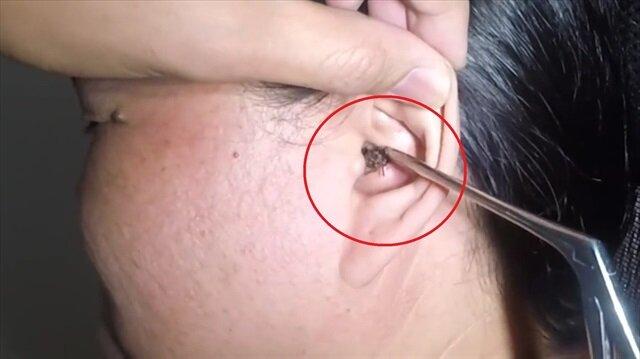 Uykusunda kulağına giren hamam böceği böyle çıkarıldı