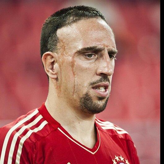 Yaralı Yüz: Franck Ribery