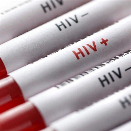 Gambiya'da kötü tablo: 21 bin kişi AIDS hastası