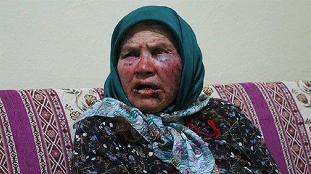 Yaşlı kadını dövenler serbest