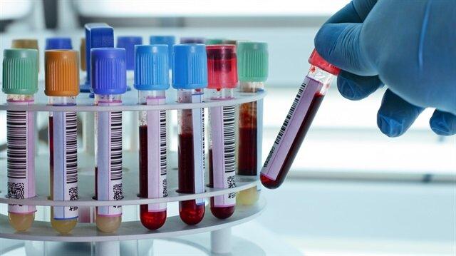 Uzmanlar meme kanserinin en belirgin özelliğinin ele gelen kitle olduğunu söylüyor.