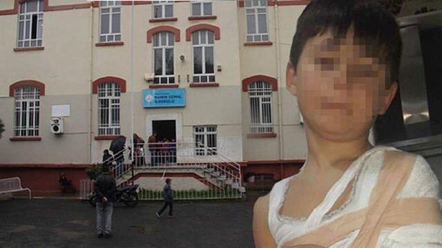 7 yaşındaki çocuk okulda feci şekilde darp edildi