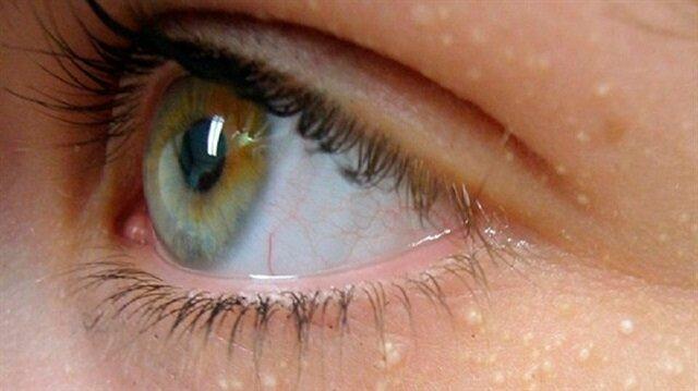 şeker-göz'görseller' ile ilgili görsel sonucu