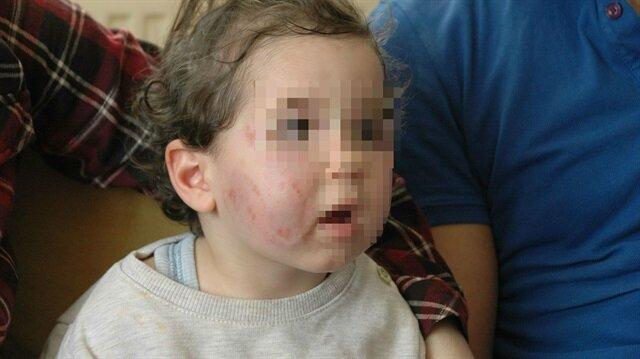 Okul yetkileri ise Ela'nın başka bir çocuk tarafından ısırıldığını ileri sürdü.