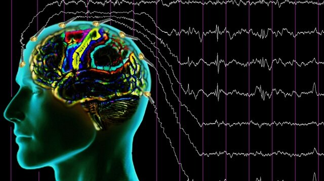 Motor hücrelerinin zarar görmesinin ardından kişide ALS hastalığı ortaya çıkar.