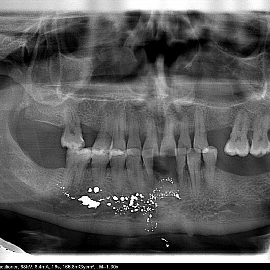 Dişini çektirirken başına öyle bir şey geldi ki inanamadı