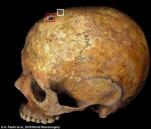 Kafatası delindikten 1 hafta sonra ölen hamile kadının, gömüldükten sonra doğum yaptığı anlaşıldı.