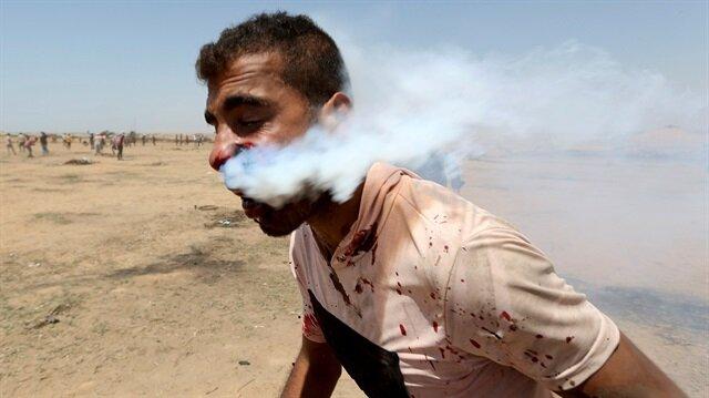 Ağzına gaz bombası isabet eden Filistinli, tedavi için Gazze'den çıkmayı bekliyor