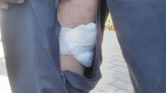 Bursa'da pitbull dehşeti