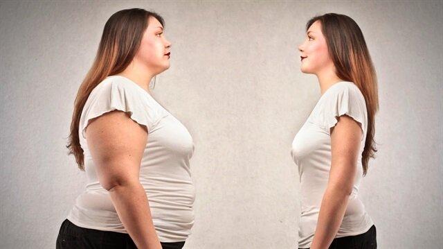 Obezite ameliyatı kimler olabilir?