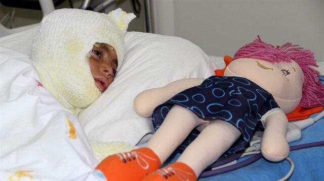 Erzurum'da tandıra düşen küçük çocuğun yüzünde farklı derecelerde yanık olduğu ve tedavisinin sürdüğü öğrenildi.
