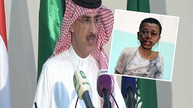 Suudi Arabistan Yemen'deki katliama 'hata' dedi