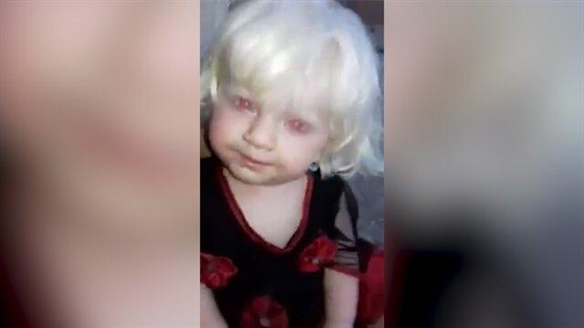Kırmızı gözlü bebeği görenler gözlerine inanamıyor