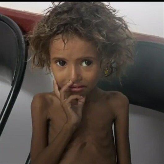 Yemen'de yüzbinler dehşet içinde