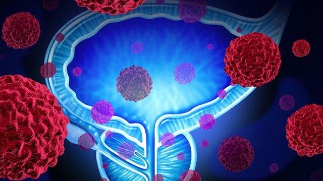 Prostat kanserinde erken tanı çok önemli