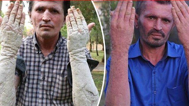 23 yıldır hastalıkla mücadele eden adam kurtuldu