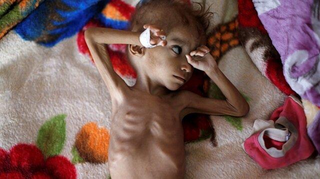 Yemen'in savaş mağduru çocukları