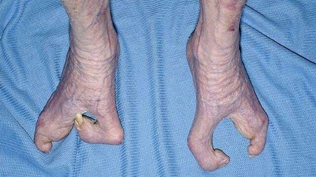 İngiltere'de 94 yaşındaki bir büyükanne, 'ıstakoz kıskacı' olarak da adlandırılan kemik hastalığıyla hayatı boyunca mücadele etti.