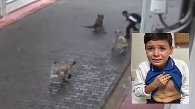 Aç köpekler küçük çocuğa dehşeti yaşattı