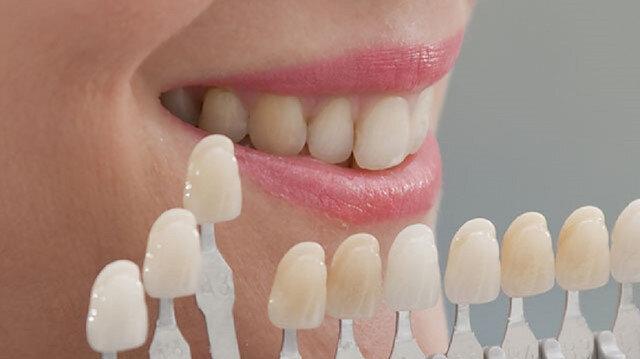 Her diş rengi bir sorunun işaretçisi