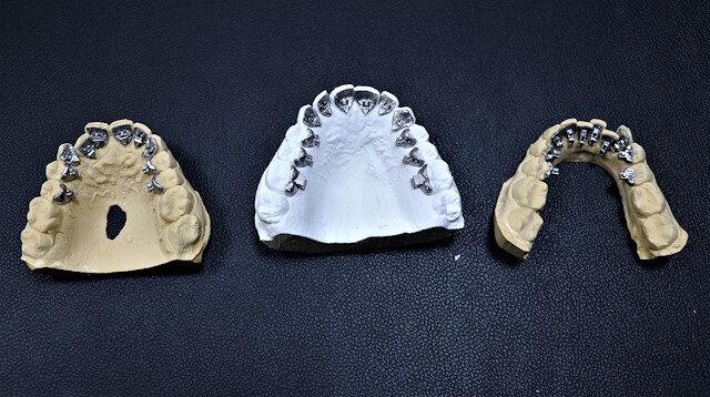 Diş tedavisinde kullanılan 'görünmez teller' Van'da üretildi