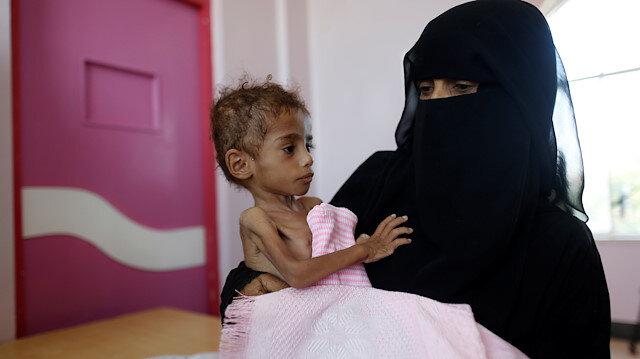 Yemen'de milyonlar açlıktan ölüyor